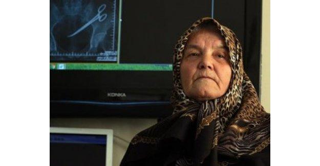 Ameliyat sırasında karnında unutulan makasla 5 yıl yaşadı