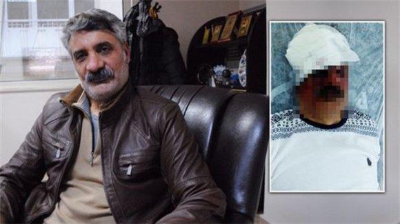 Çiyager'i dövenler gözaltında
