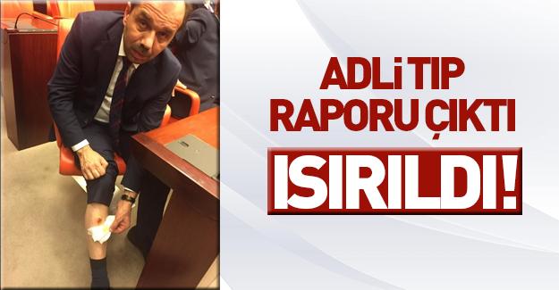 AK Partili vekil ısırıldığına dair Adli Tıp raporu aldı
