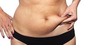 Liposuction Ameliyatı Öncesi ve Sonrası