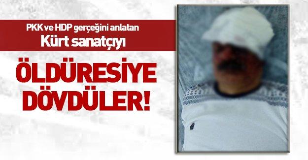 Kürt sanatçı Çiyager'i PKK'lılar linç etti!