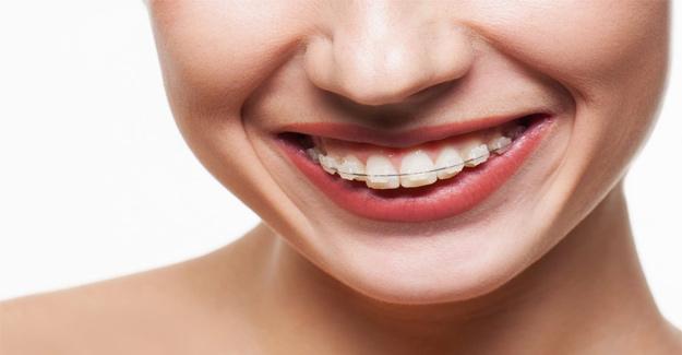 Neden Ortodontik Bozukluklar Oluşur?